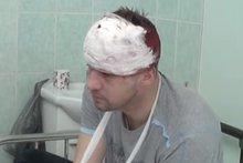 Предполагаемый виновник ДТП на Шевцова. Фото «Вести Иркутск»