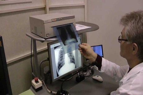 Заболеваемость туберкулёзом среди детей вИркутской области снизилась на18,5%