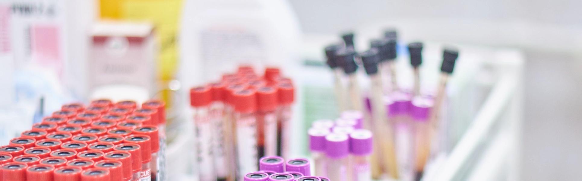 Сдать анализ на ВИЧ бесплатно. Проверено на себе
