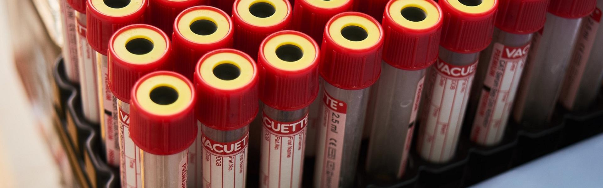 Как я сдавала тест на антитела к COVID-19